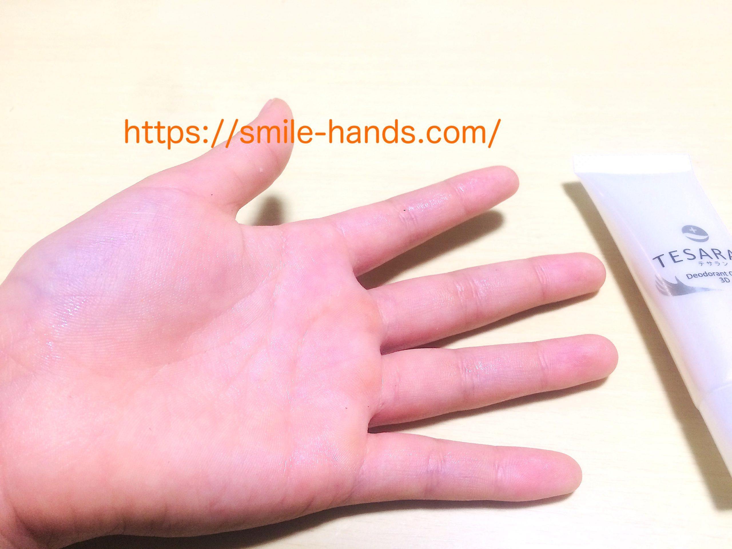 子供の手汗テサラン