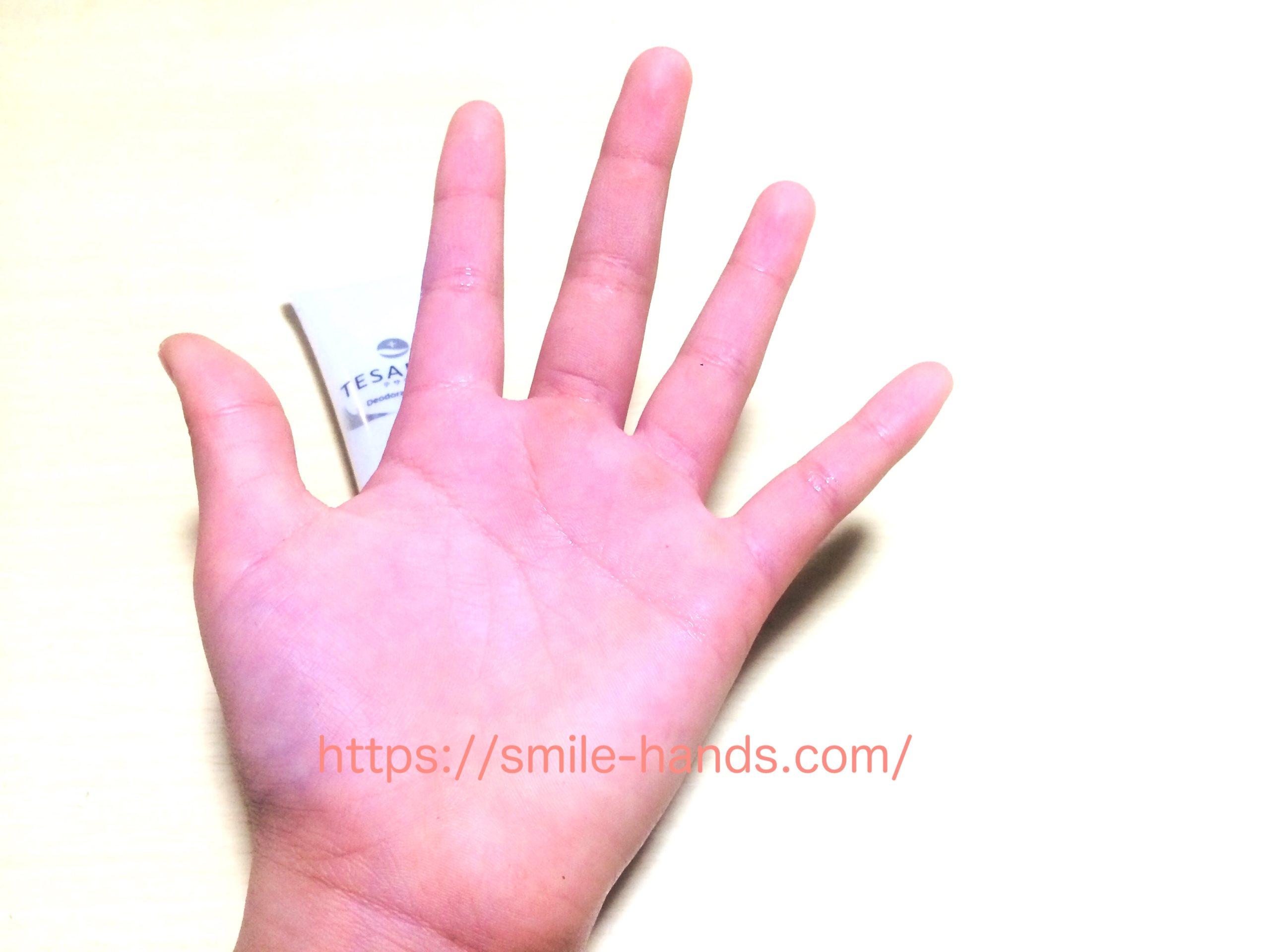 子供の手汗対策