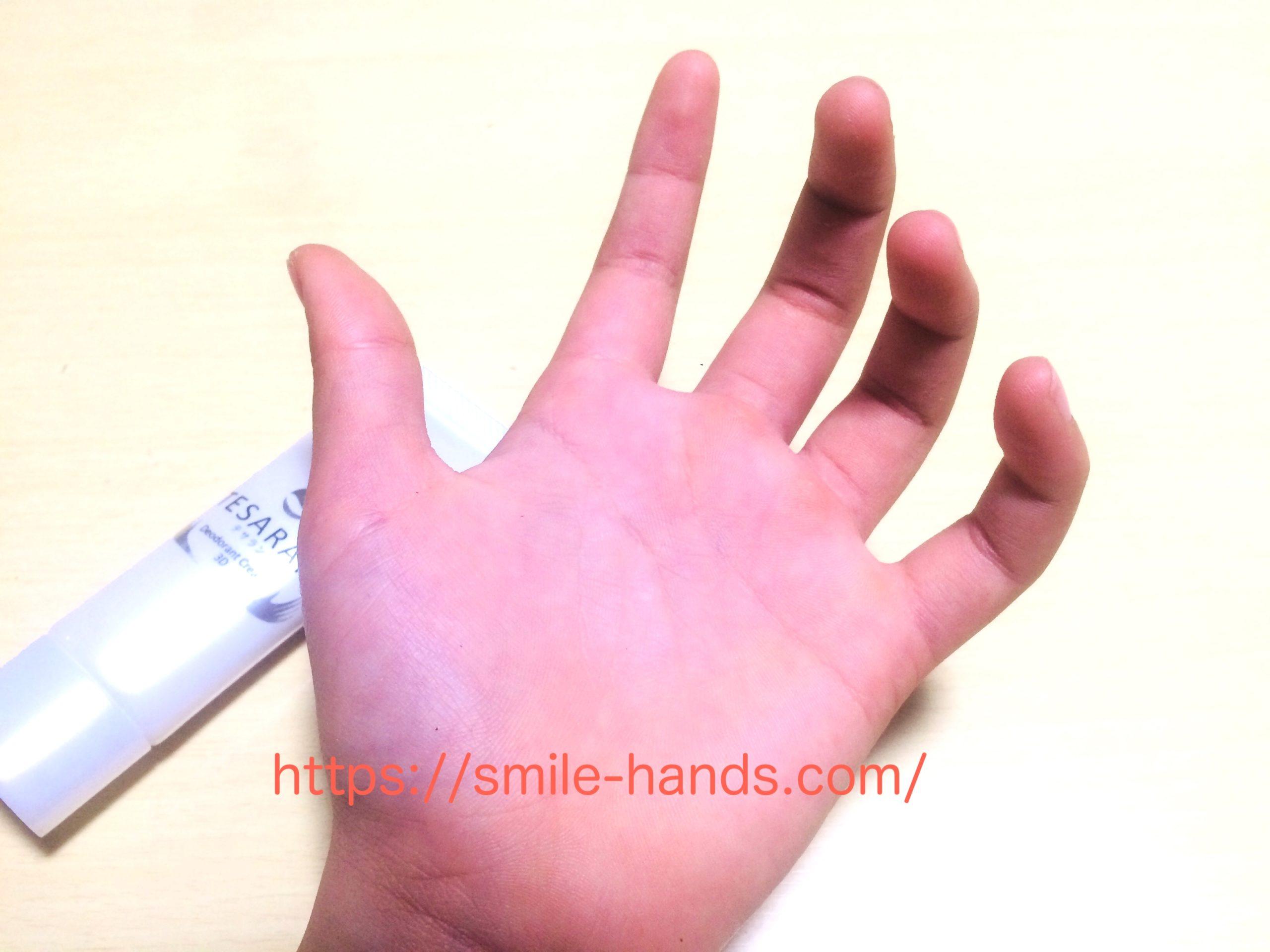 手掌多汗症の子供にテサラン